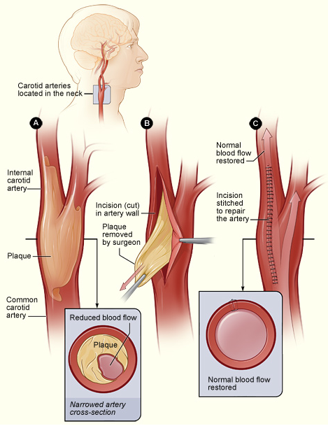 Carotid graphic1