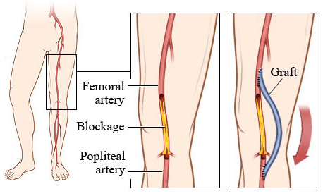 femoral bypass graphic