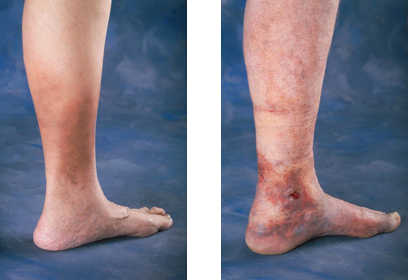 varicose veins treatment ireland