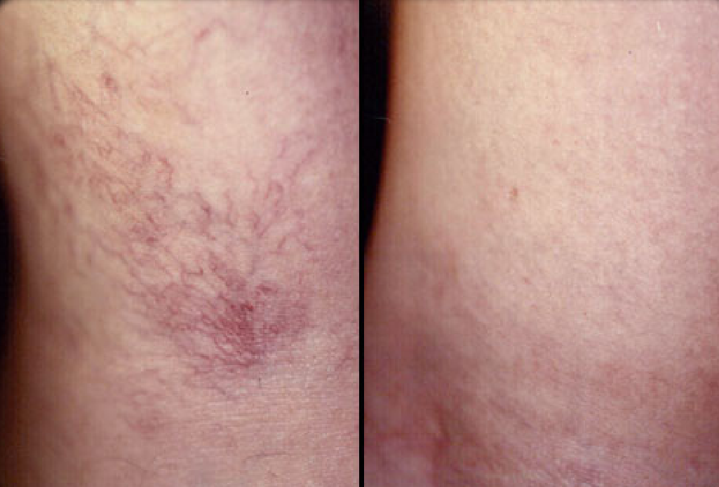 Micro-sclerotherapy pic